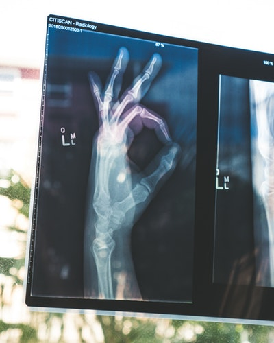 xrays - 5 Risks of Different Radiology Technologies